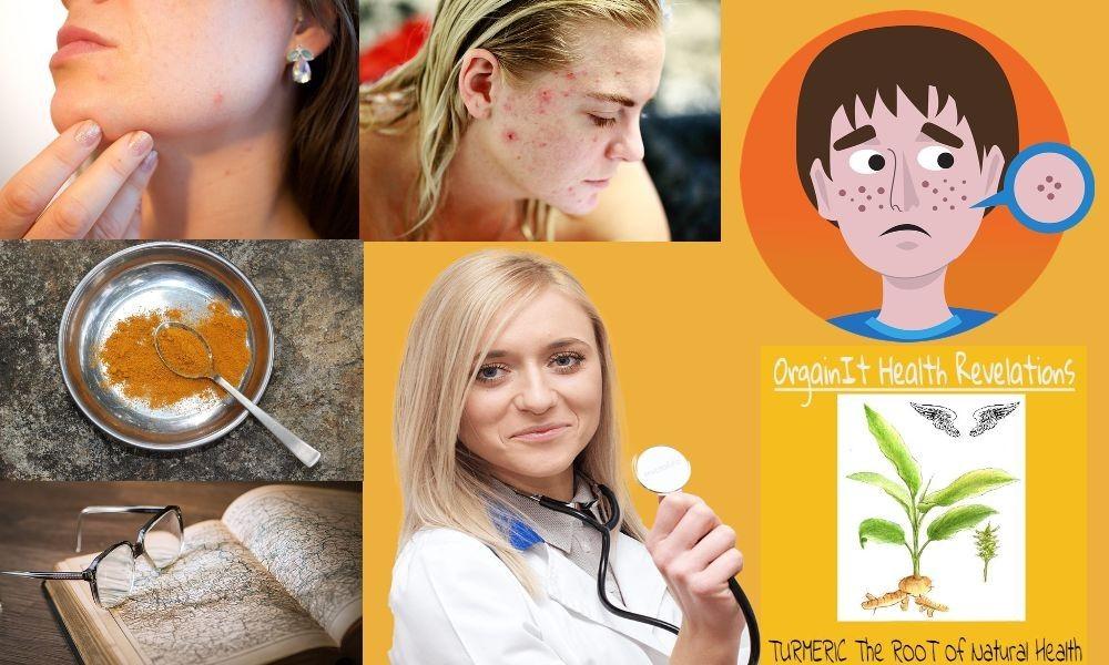 Turmeric For Skin Benefits | 6 Natural Skin Uses Of Turmeric