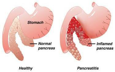 Main Function of The Pancreas