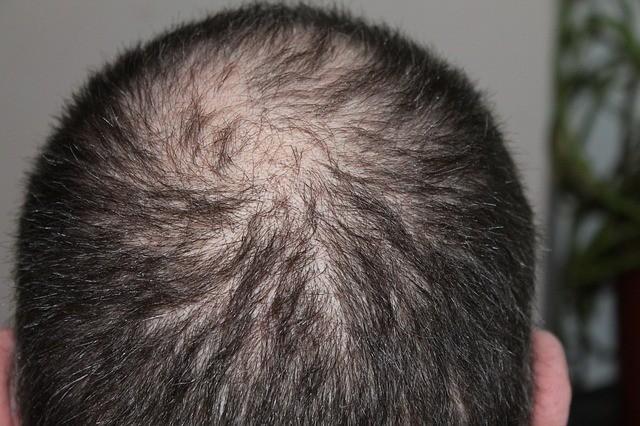 Monat Hair Growth