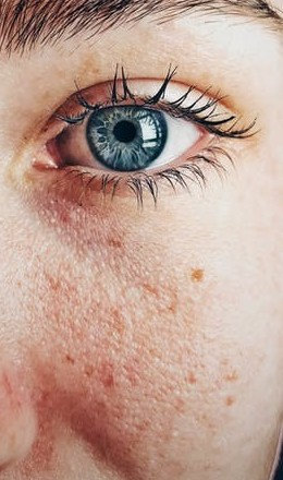 best cures for rosacea