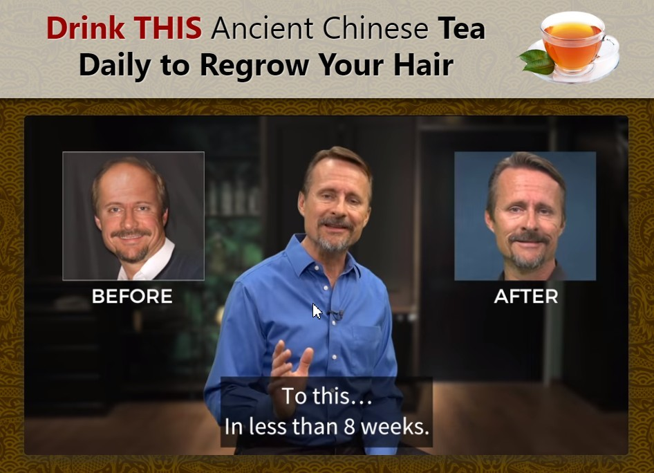 Regrow Hair Protocol David McKenna