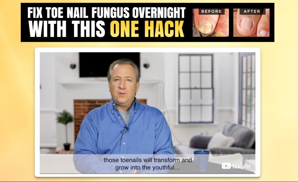 Fungus Hacks Review
