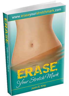 erase your stretch mark ebook