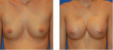 Breast Fast before and after