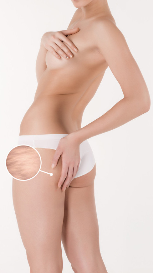 cellulite area on a woman's buttocks