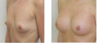 Before and after Breast Fast pills