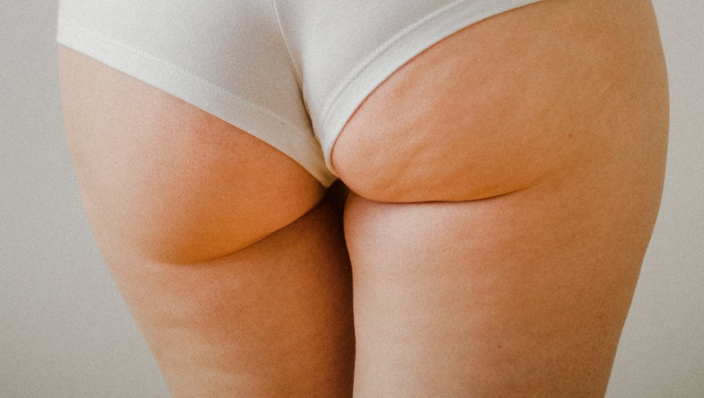 a woman's butt with slight cellulite