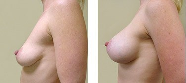 Before and after using Breast Fast