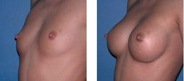 The results of using BreastFast pills
