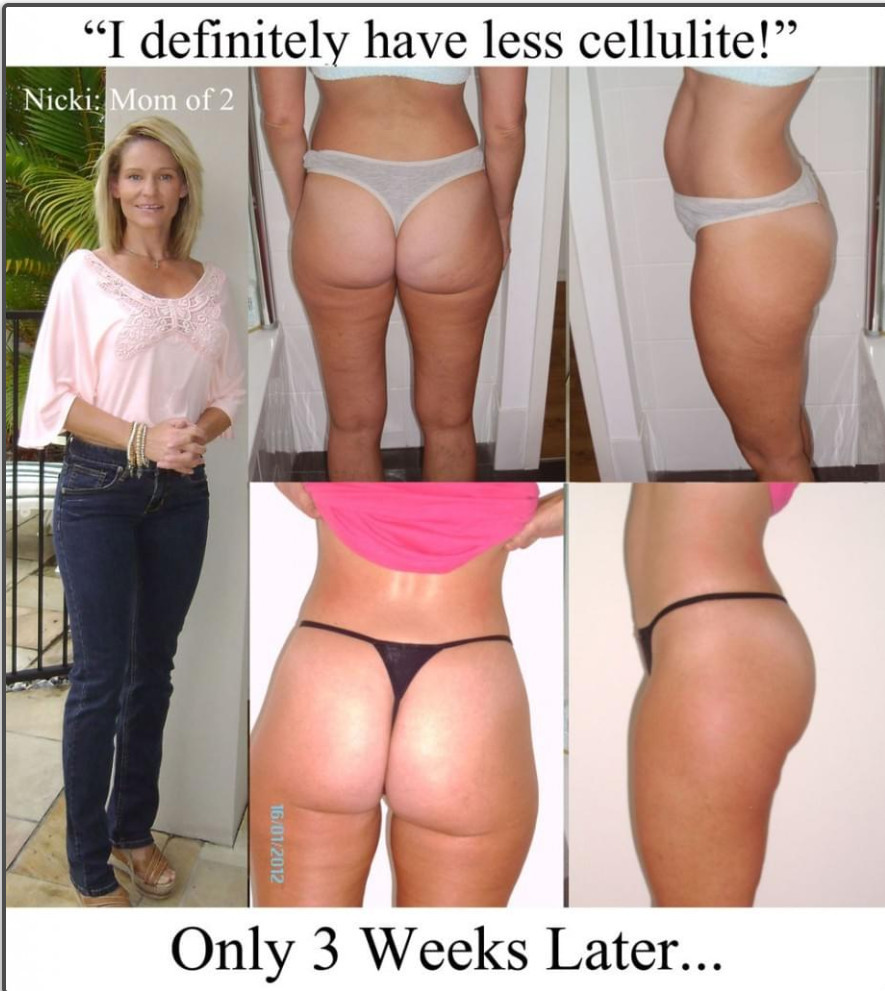 cellulite 3 weeks later