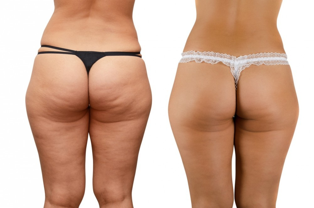 legs and buttocks with cellulite