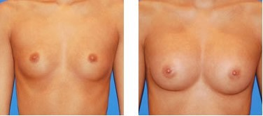 BreastFast before and after
