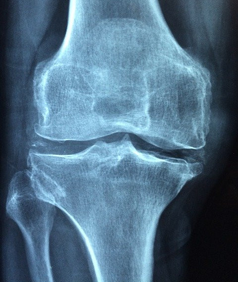 Because of its important role, joint health needs to be maintained from now on in order to continue functioning properly. Treatment for koin pain