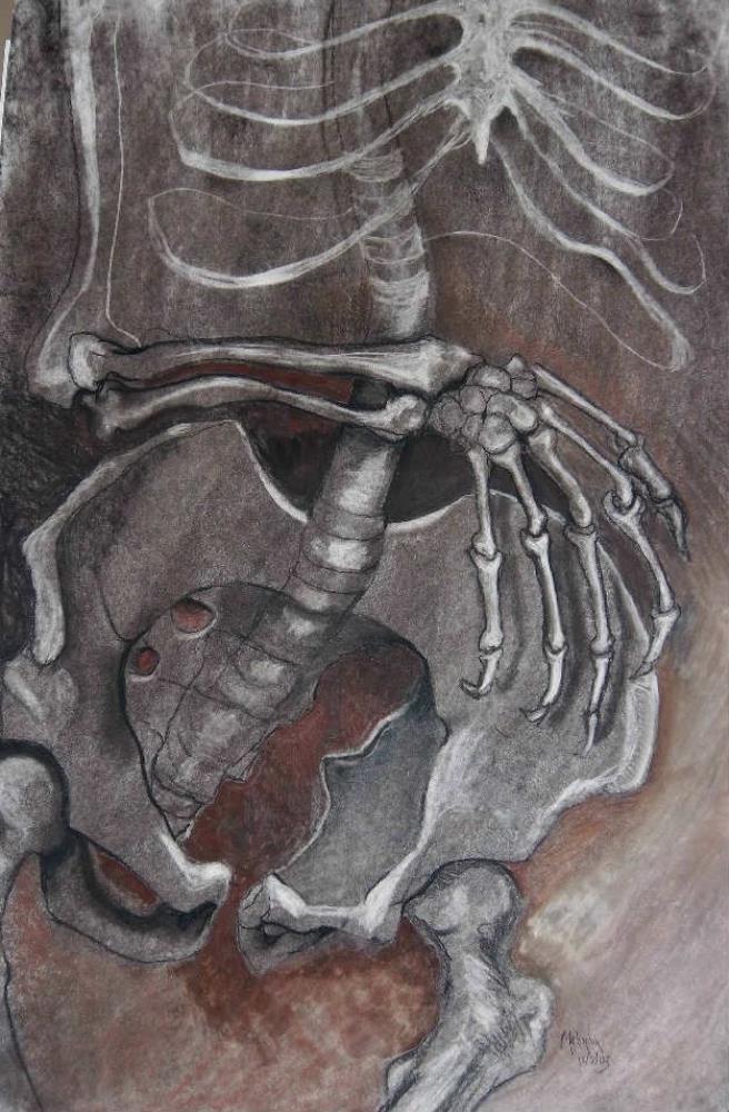 Skeletal Stud y II |