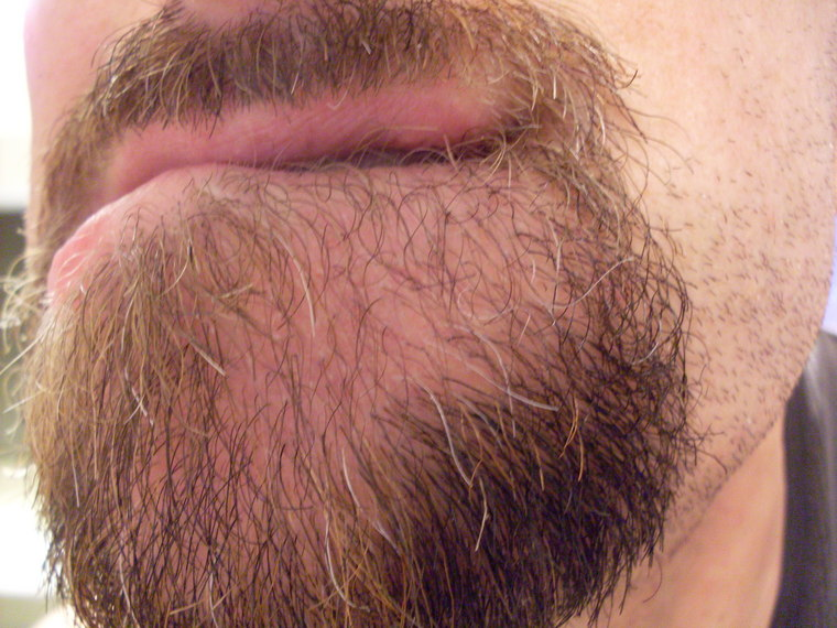 My experience with beard hair transplants - Page 4 - Beard Board