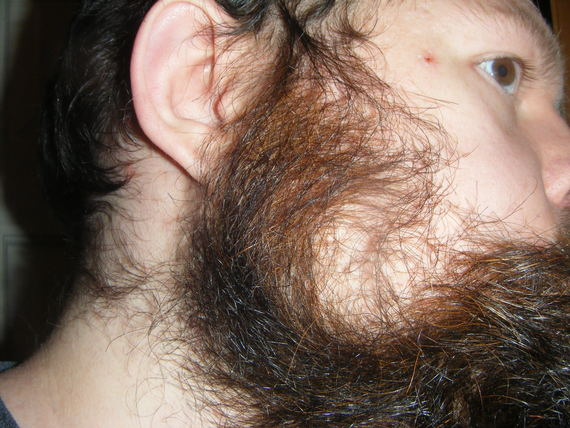 Odd Beard Growth Pattern - Beard Board