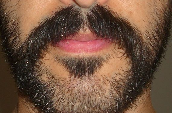 Help Space In The Middle Of The Mustache How Can I Fix