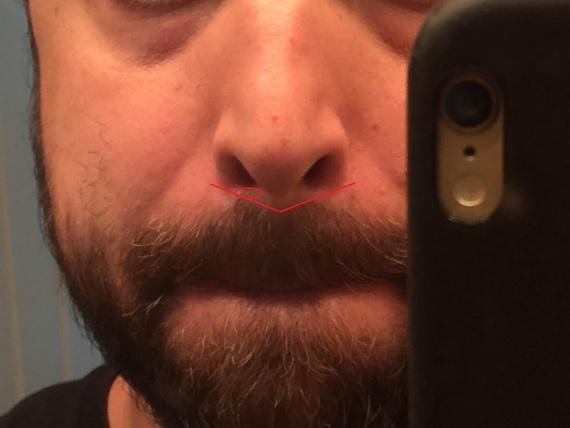 Trimming Below The Nose Beard Board