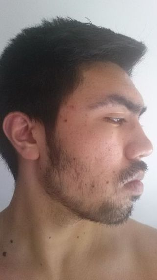 Useful not growing facial hair fast enough opinion