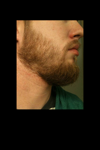 Patchy Beard success stories Before and After photos - Beard