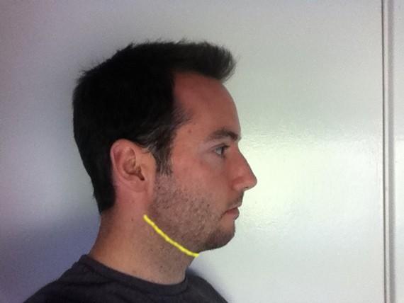 Magnificent Small Chin Weak Jaw Style Neckline Advice In Facial Hair Help Short Hairstyles Gunalazisus