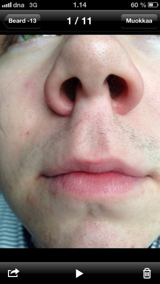 18 Year Old Trying To Grow A Beard But I Need Help Beard Board