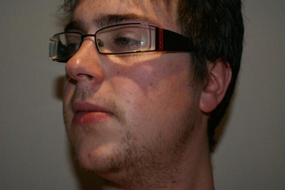 Minoxidil for facial hair growth