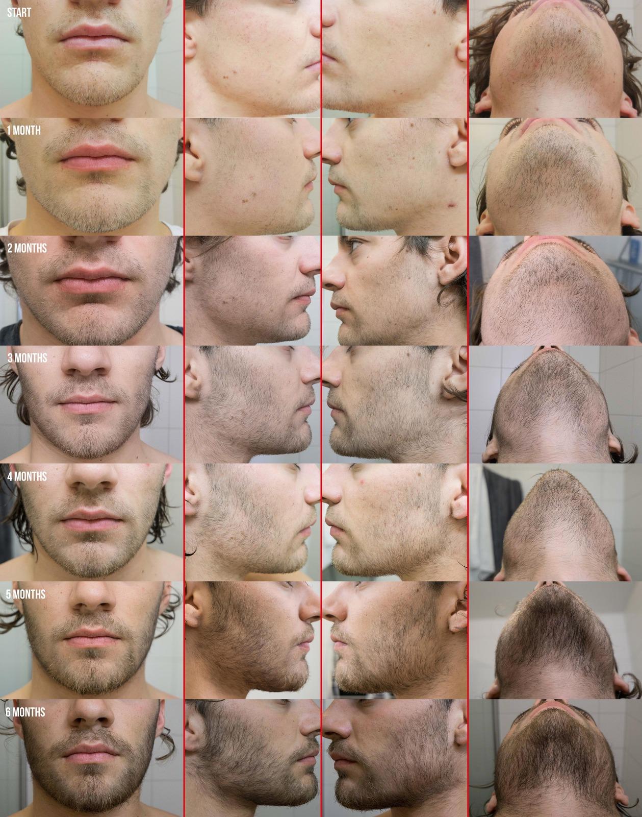 Anyone ever tried Minoxidil for beard growth? | NeoGAF