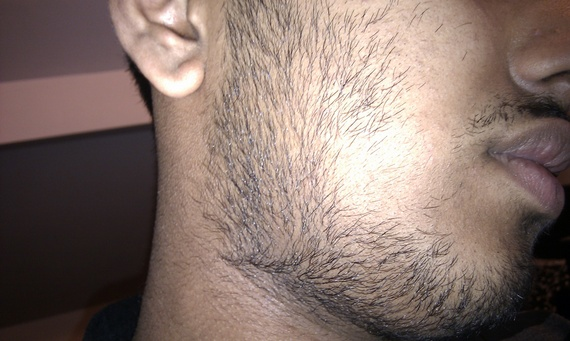 Stupendous Serious Facial Hair Problems Need Fixing S Help In Teens Under Hairstyles For Men Maxibearus