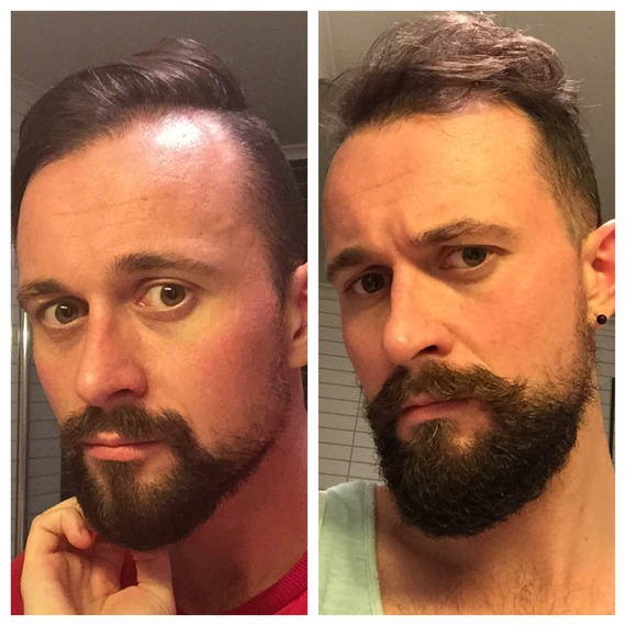 Patchy Beard success stories Before and After photos - Page