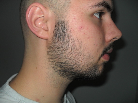 Amazing Bald N Bearded Sideburns Issue In Facial Hair Help Archive Do Short Hairstyles Gunalazisus