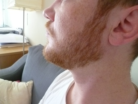First time beard and neckline problems - Beard Board