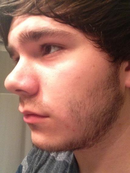 Facial Hair Teens 69