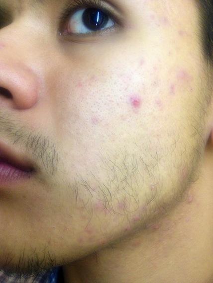 Do Beards Start Off This Way 2 Beard Board