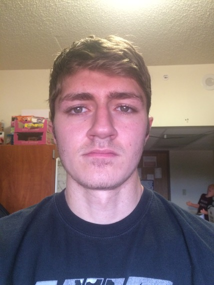19yr Old, No Shave November. [Update]
