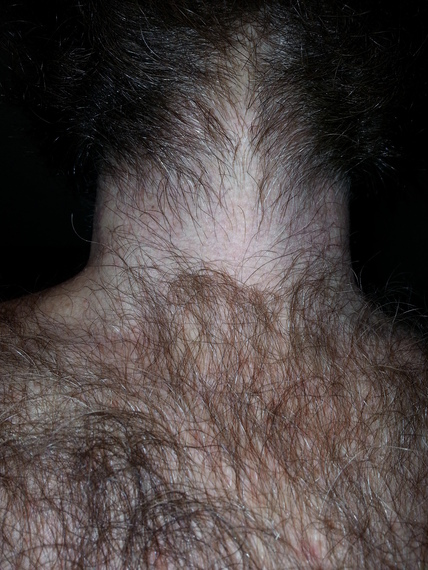 Back Of Neck Hair Removal Patient #0649 | Before and After ... |Hairy Back And Neck