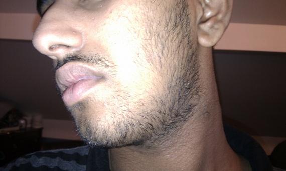 Facial Hair Teens 3
