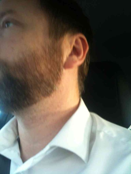 Neckline advice, weak jawline - Beard Board