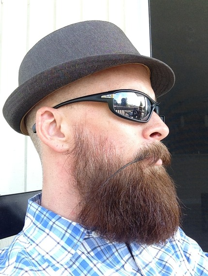 Swell Patchy Beard Success Stories Before And After Photos In Beard Short Hairstyles For Black Women Fulllsitofus