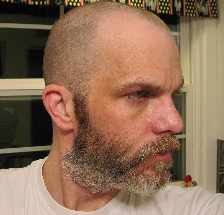 Thinning hair shaved head