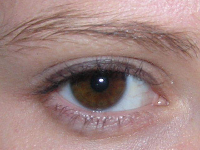 Puffy Eyes Losing Eyebrows Hair Loss After Ets Ets And Reversals