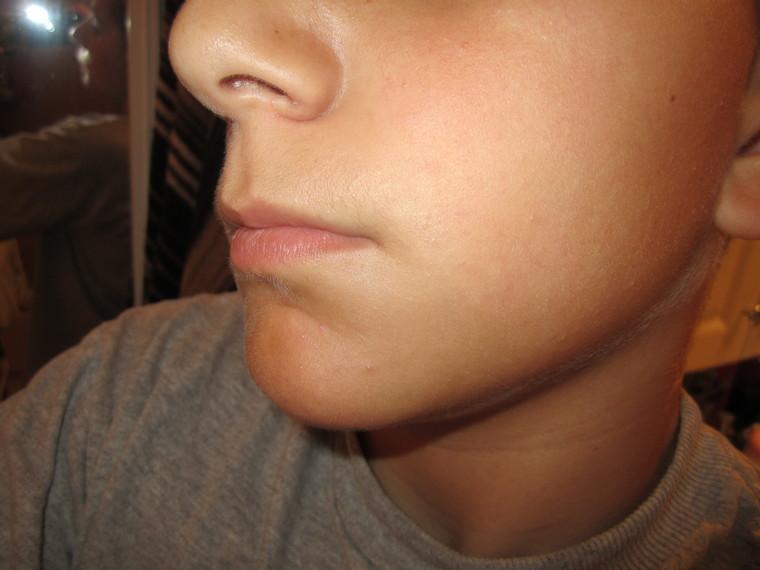 Facial Hair Teens 61