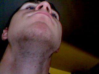 Teen Bald Spot After Skin 120