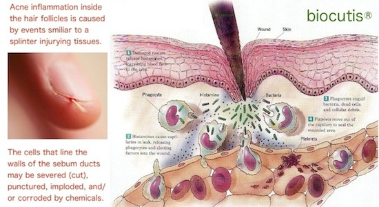 Acne Inflammation Caused Aggravated By Injuries To Cells Sebum Ducts