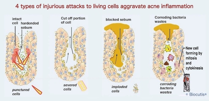 $ types of injurious attacks to living cells aggravate acne inflammation