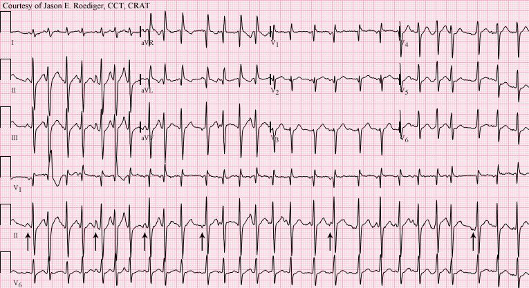 Multifocal Atrial Tachycardia (EKG representation.)