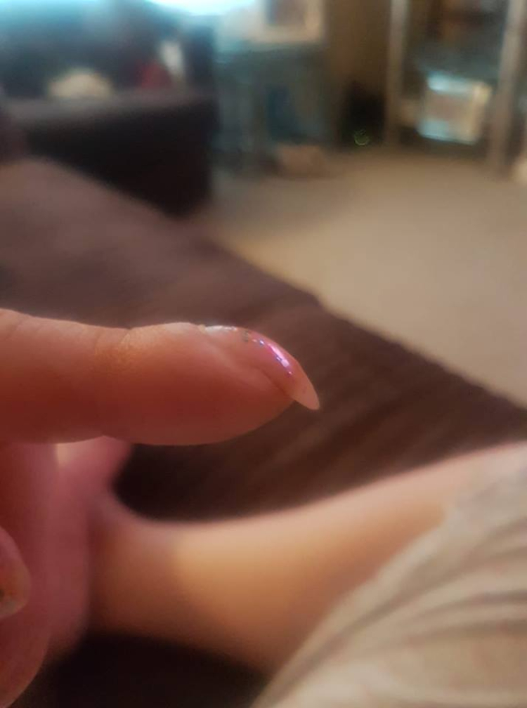 Image of nail clubbing