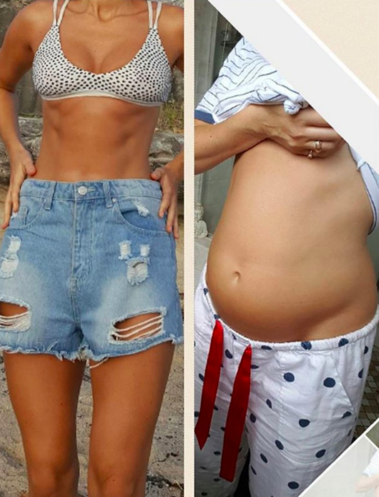 Back to back image of model Alyce Crawford showing bloated stomach