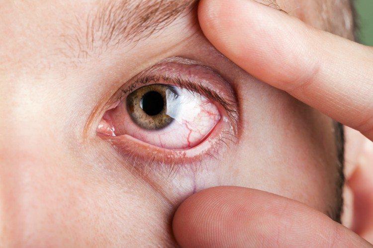 Image of red eye.