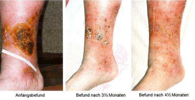Three cases for stasis dermatitis.